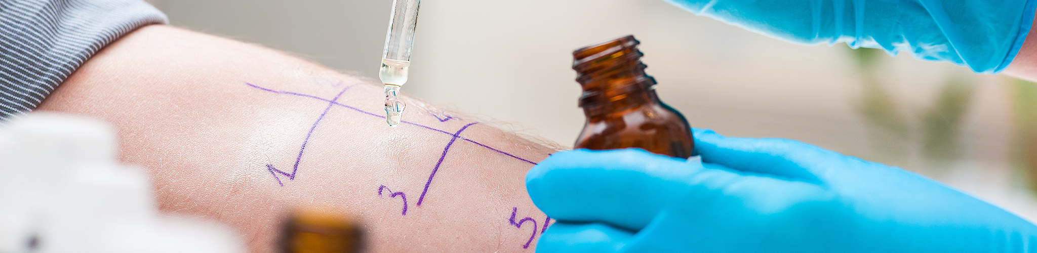 Allergietest auf einem Unterarm